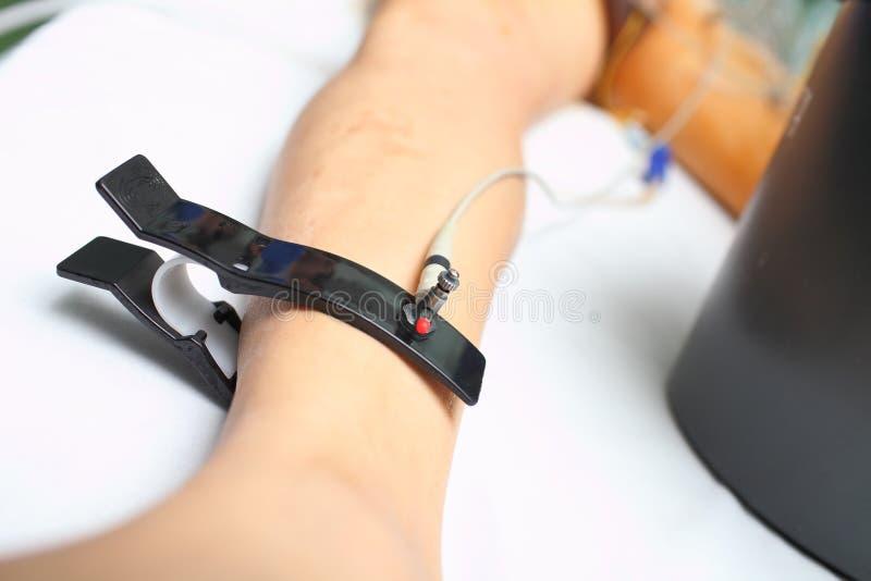 Elektrod av ECG-spåring av kritiskt dåligt patienten i intensna arkivbilder