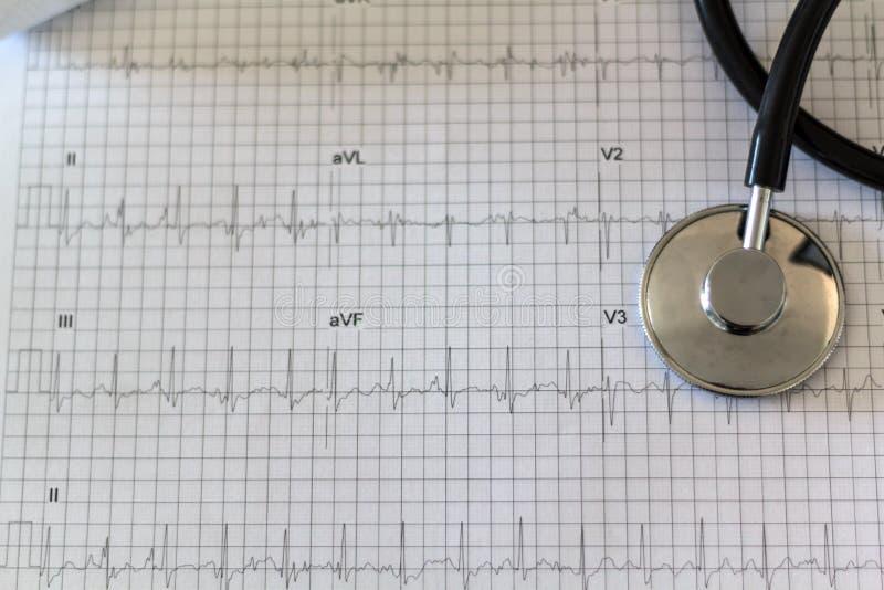 Elektrokardiogram och stetoskop royaltyfri foto