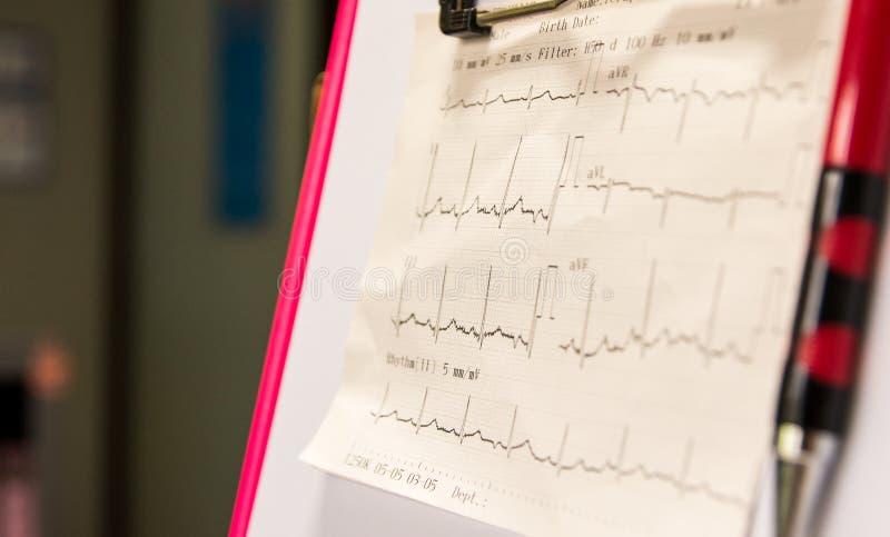 Elektrokardiogramgraf på det tålmodiga diagrammet och den väntande doktorn som igen kontrollerar tecknen av patienten Primär omso arkivfoto