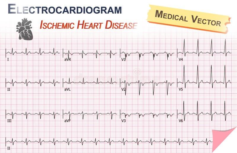 Eletrocardiograma (ECG, ECG) da doença cardíaca isquêmica (enfarte do miocárdio) e anatomia do ícone do coração ilustração royalty free