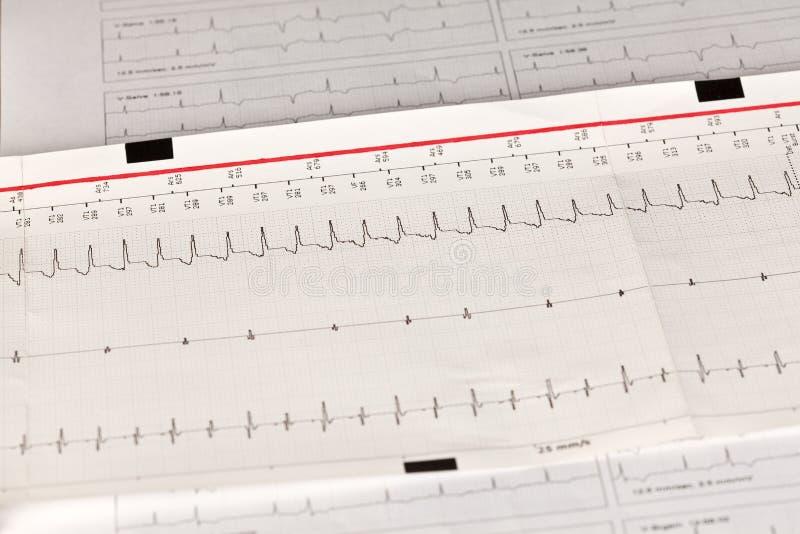 Elettrocardiogramma ECG/elettrocardiogramma con aritmia cardiaca immagini stock libere da diritti