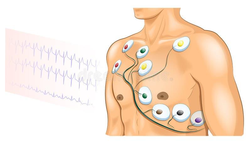 Elettrodi di ECG sul petto dell'atleta illustrazione di stock