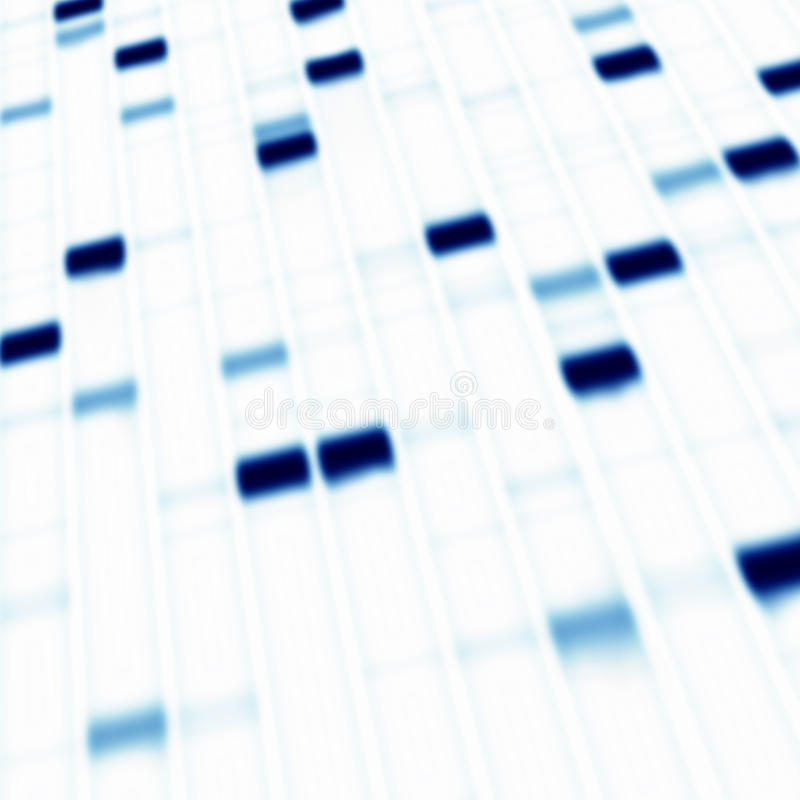 Elettroforesi del gel del DNA fotografie stock