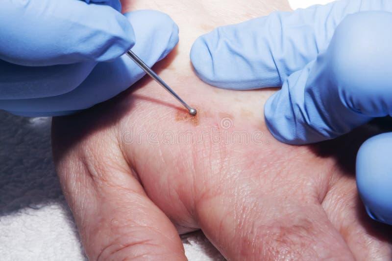 Eliminación de enfermedades de la piel foto de archivo libre de regalías