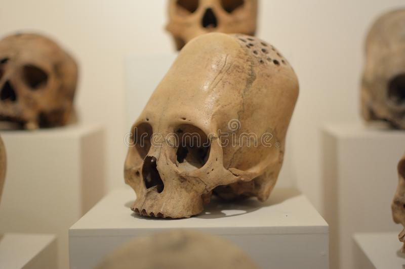 Elongated skulls of ancient human. Elongated skulls of ancient Paracas people with evidences of surgical trepanation stock images