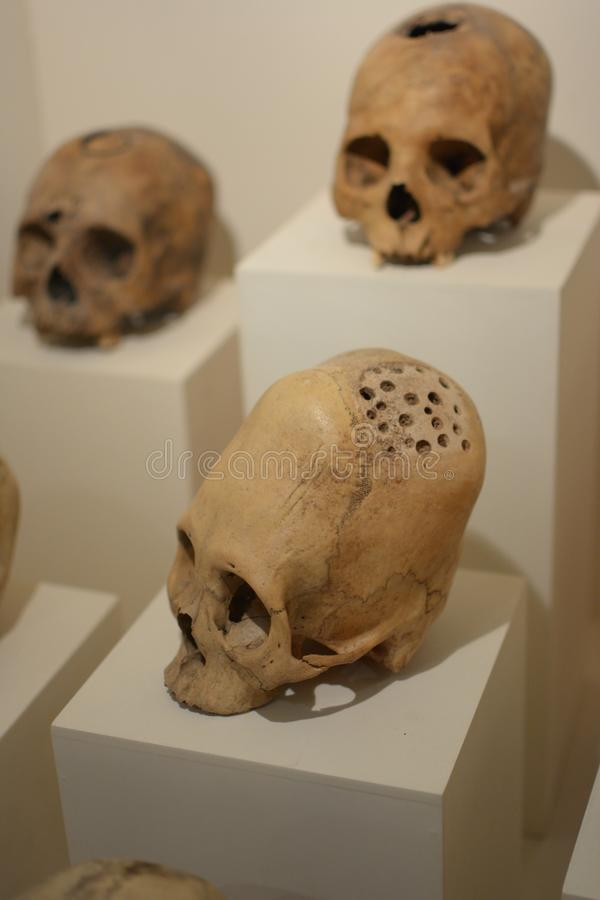 Elongated skulls of ancient Paracas people with evidences of surgical trepanation. Elongated skulls of ancient Paracas people in Peru royalty free stock image