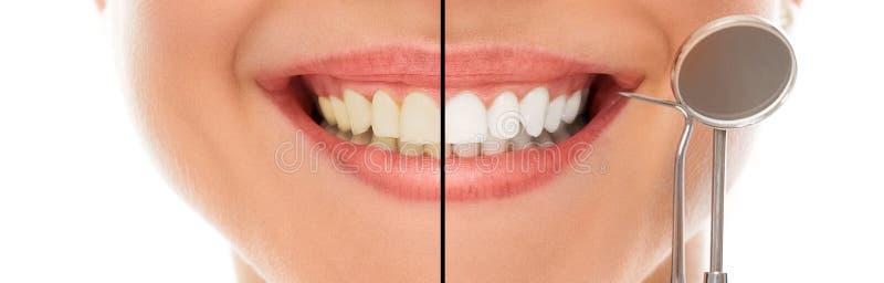 Em um dentista com um sorriso fotografia de stock royalty free