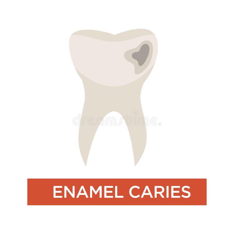 Emaliowych próchnic choroby zębu szkody stomatologiczna dentystyka ilustracja wektor