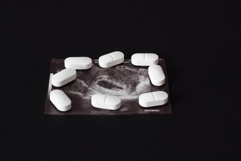 Embarazo, un tiro del uzi y píldoras en un fondo negro Aborto, primer fotos de archivo libres de regalías