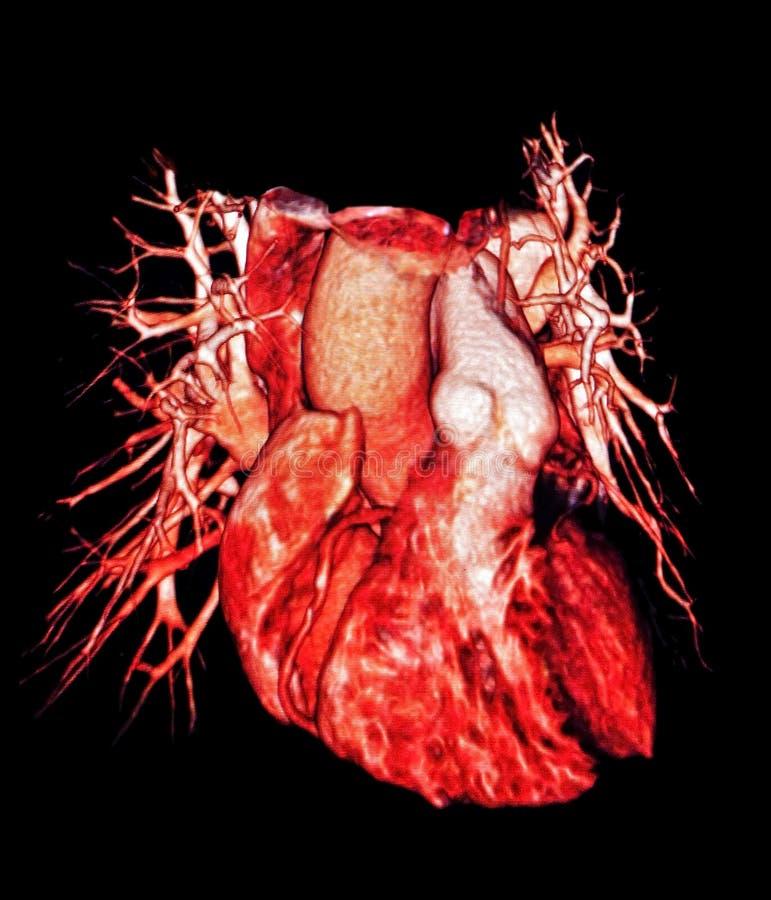 Embarcações humanas do coração e do pulmão, imagem do CT, 3D imagens de stock royalty free