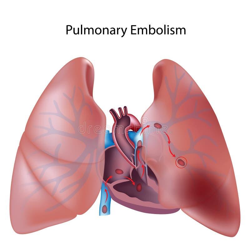 Embolia polmonare illustrazione di stock