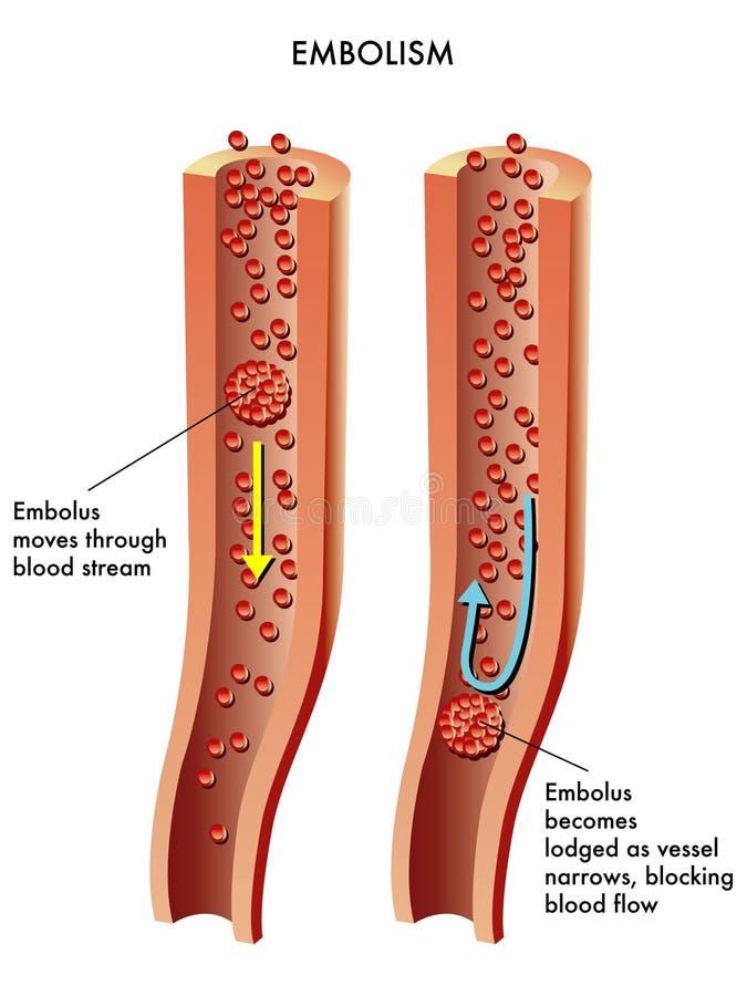 Embolisme illustration de vecteur