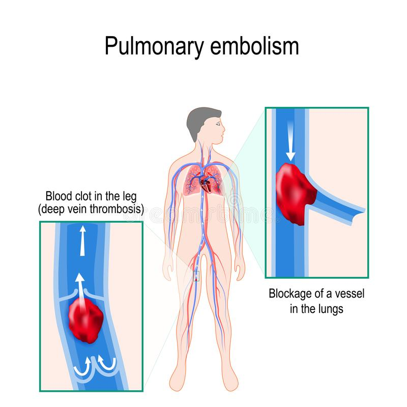 Embolismo pulmonar Silhueta humana com circulador destacado ilustração royalty free