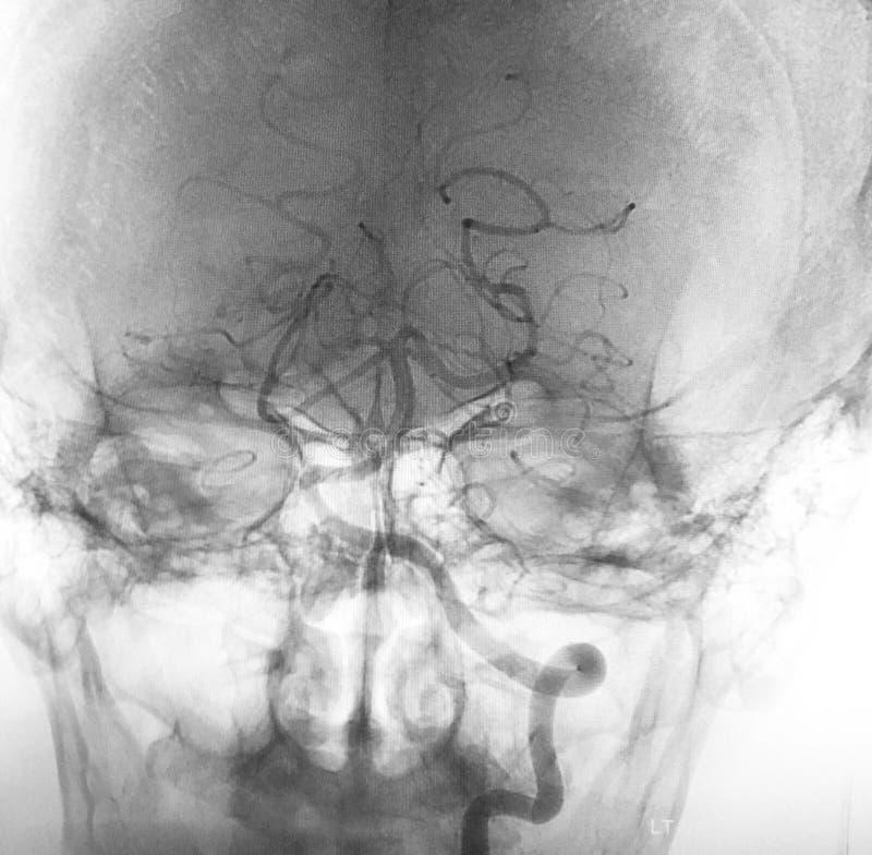 Embolization pavermian thrombosierter Aneurismscan stockbild