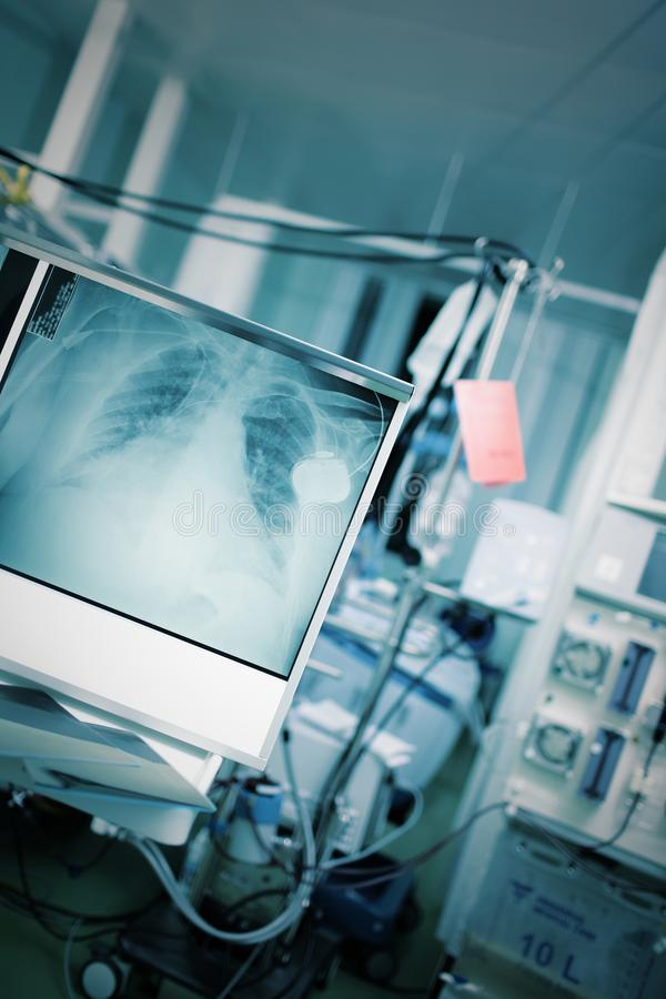Emergency room with patient in bed surrounded by technical equip. Ment and x-ray image of chest royalty free stock photo