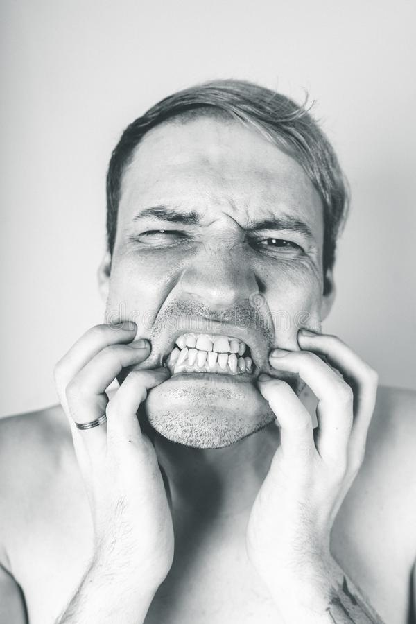 Emotional portrait of a crazy guy in close-up. concept: the nervous breakdown, mental disease, headaches and migraine. black and w. Emotional portrait of a crazy stock image