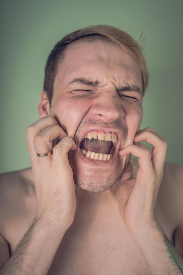 Emotional portrait of a crazy guy in close-up. concept: the nervous breakdown, mental disease, headaches and migraine.  stock photos