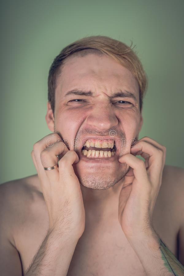 Emotional portrait of a crazy guy in close-up. concept: the nervous breakdown, mental disease, headaches and migraine.  royalty free stock photos