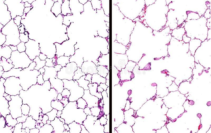 Emphysem in den Lungen lizenzfreie stockbilder