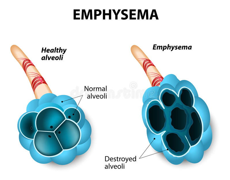Emphysema. Damage to the air sacs in lungs. Chronic Obstructive Pulmonary Disease