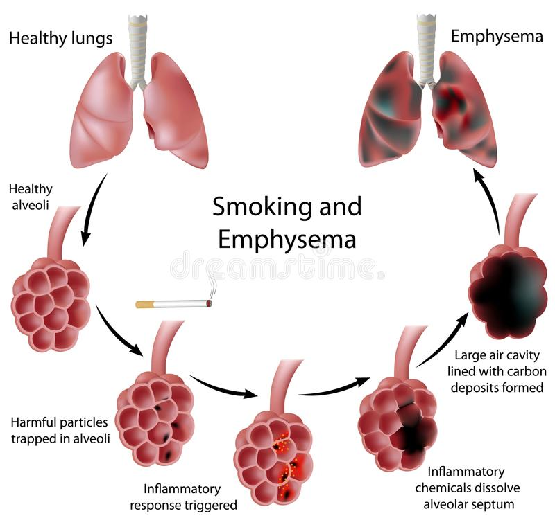 emphysemarökning royaltyfri illustrationer