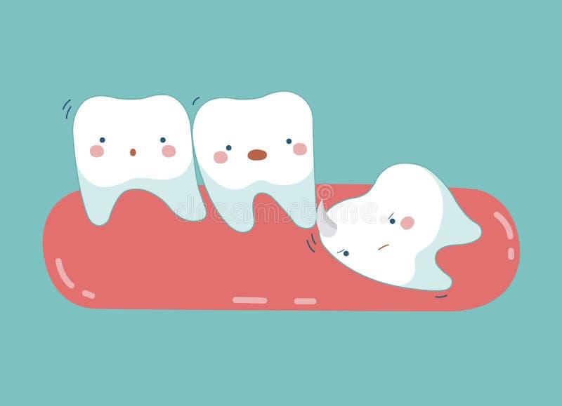 Empuje del diente de sabiduría el otro diente, dientes y concepto del diente de dental stock de ilustración