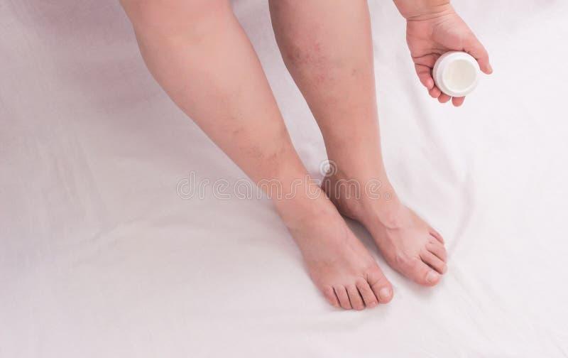 En äldre kvinna applicerar den läka salvan till hennes ben på åderbråcks åder, phlebeurysmben, kvinnan, vit bakgrund, skincare royaltyfri bild