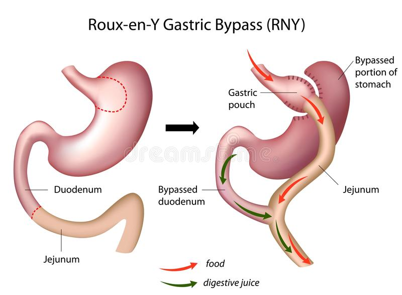 EN γαστρική χειρουργική επέμβαση Υ μιγμάτων από λίπος και αλεύρι παράκαμψης διανυσματική απεικόνιση