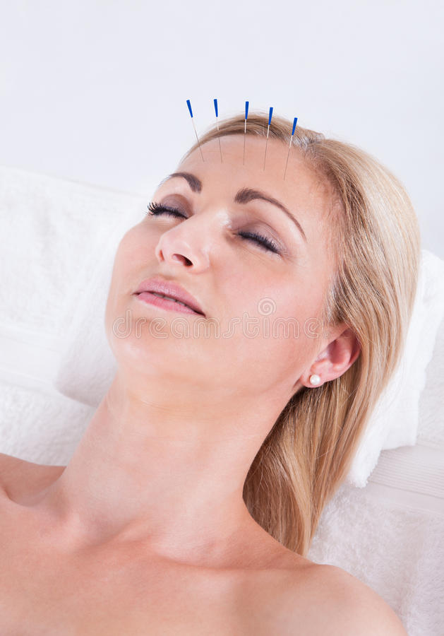 En akupunkturterapi i en Spa mitt arkivfoton