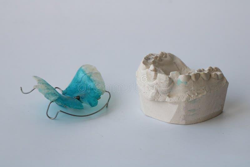 En avtagbar ortodontisk apparat och ett gips från patientkäke Begreppet pediatrisk tandvård, korrigering av bett arkivbilder