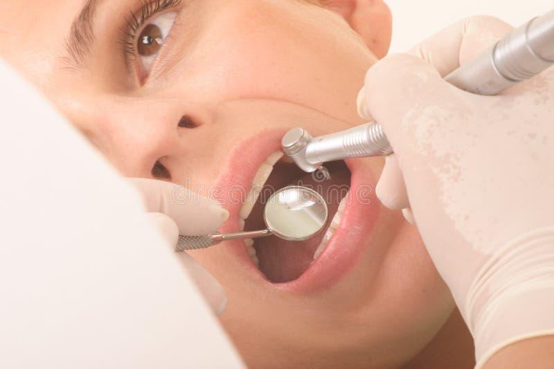 En el dentista - para arriba 2 cercanos fotos de archivo libres de regalías