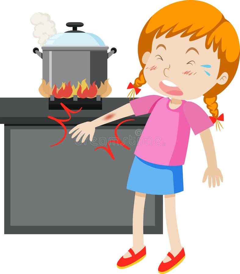 En flicka med den brända armen stock illustrationer