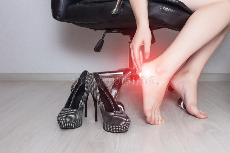 En flicka sitter i en kontorsstol och suddar en fotsalva med den medicinska salvan mot en svamp- infektion, kräm arkivbild