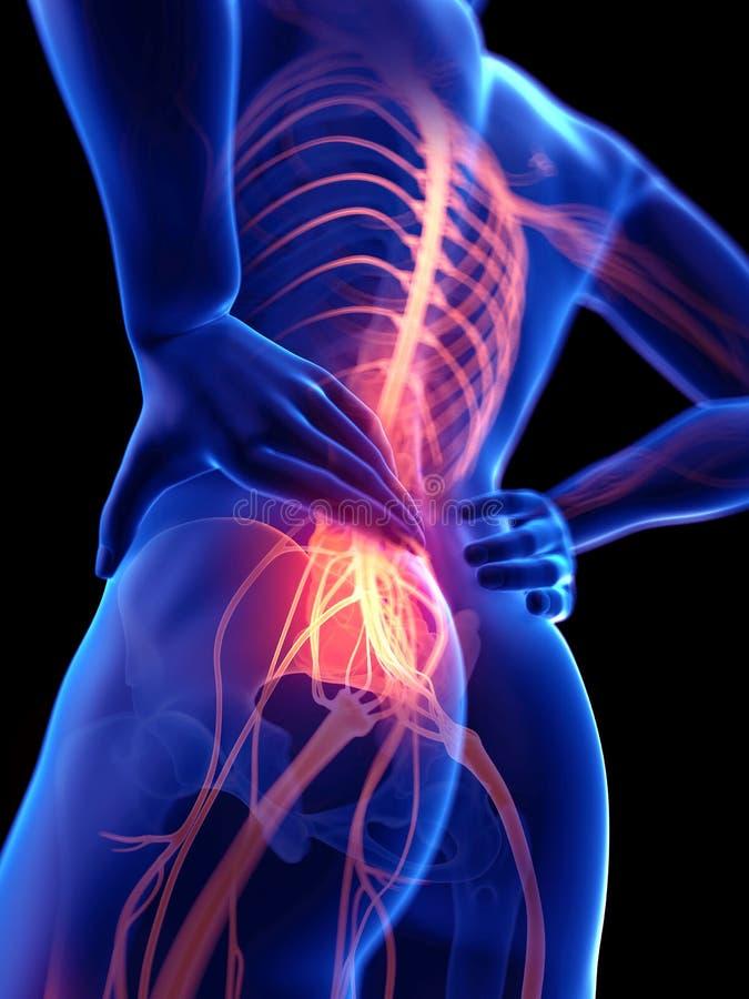 En grabb med smärtsamma nerver stock illustrationer