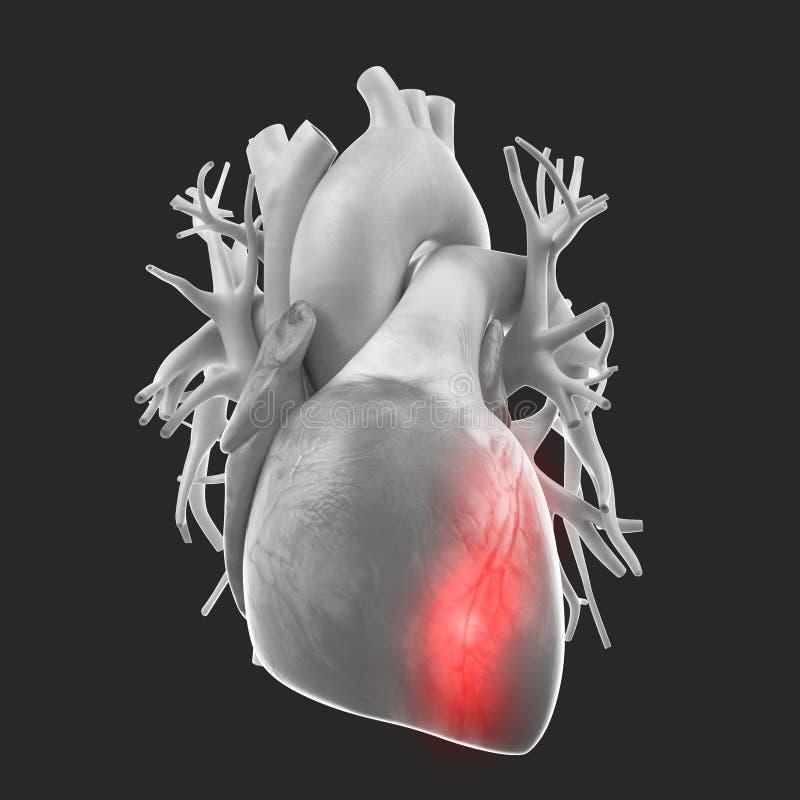 En hjärtinfarkt vektor illustrationer