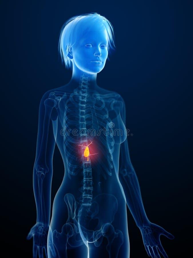 En inflammerad gallbladder royaltyfri illustrationer