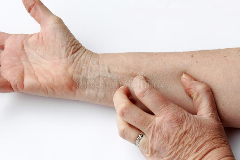 En kvinna har torr kliande hud på insidan av hennes arm arkivfoton