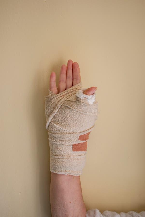 En kvinnas handled i en tung ensemble efter en tummeoperation arkivfoto