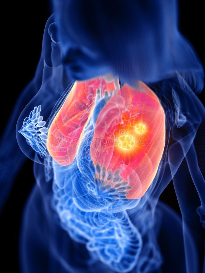 En kvinnas lungatum?r vektor illustrationer
