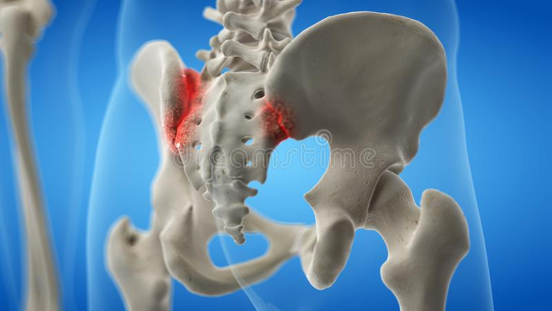 En ledgångs- iliosacral skarv stock illustrationer