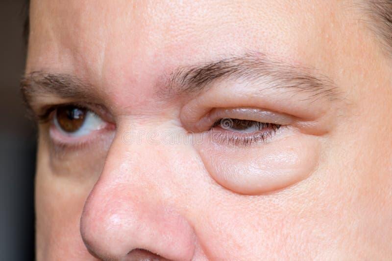 En man med sjuka ögon royaltyfri foto