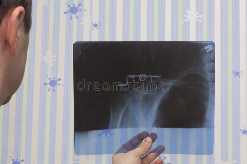 En man med en trauma till det högra nyckelbenet av den olika röntgenstrålen avbildar I bilden kan det ses att han var fixade wi f royaltyfria foton