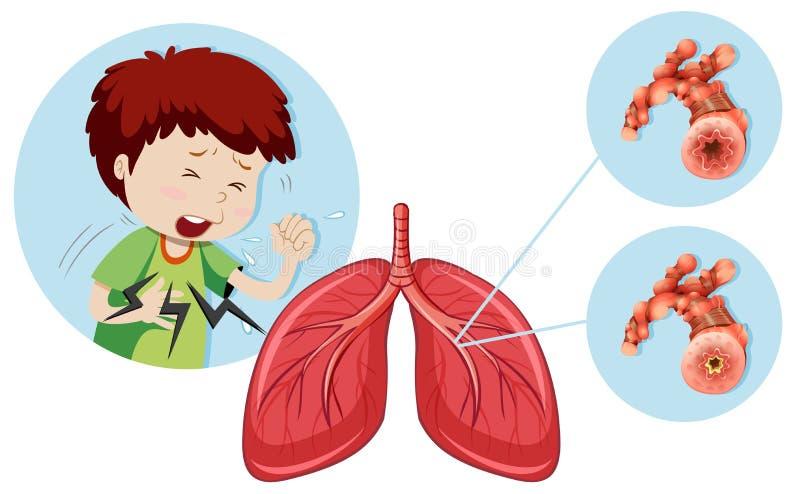 En man som har den kroniska hindrande lung- sjukdomen royaltyfri illustrationer