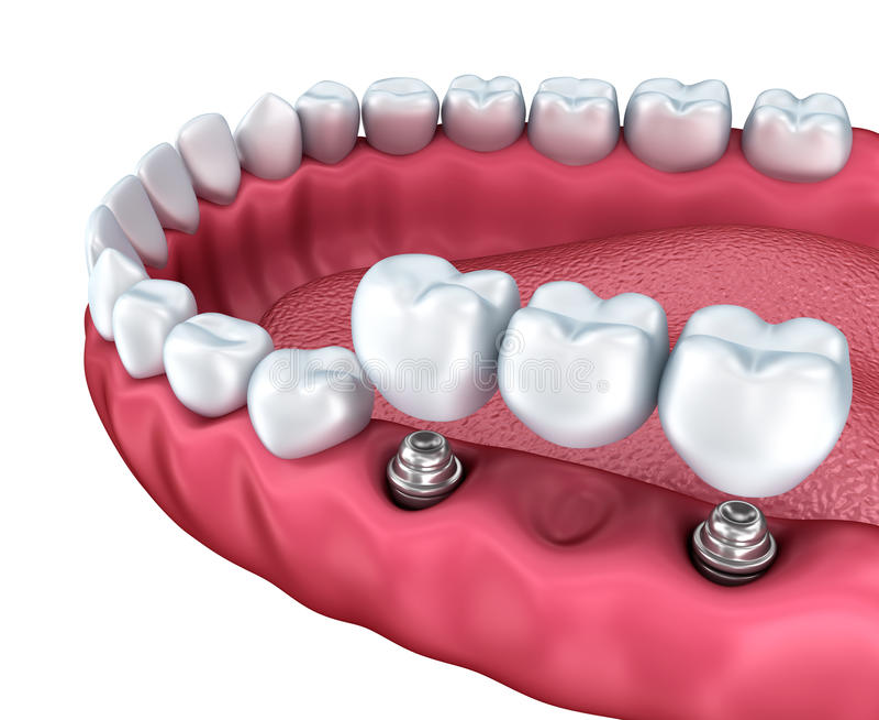 En närbildsikt av lägre tänder och tand- implantat royaltyfri illustrationer