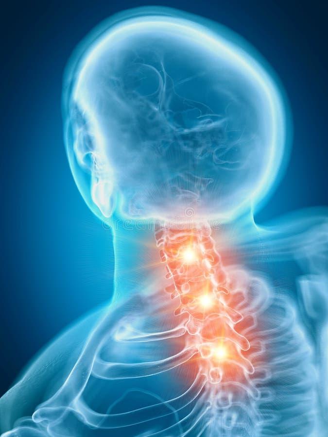En smärtsam cervikal rygg vektor illustrationer