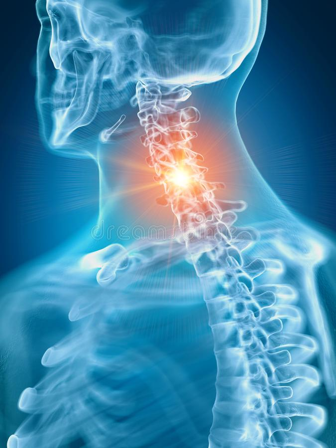 En smärtsam cervikal rygg royaltyfri illustrationer