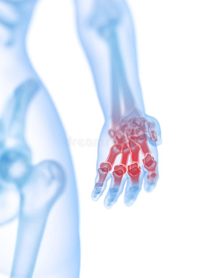 En smärtsam hand vektor illustrationer