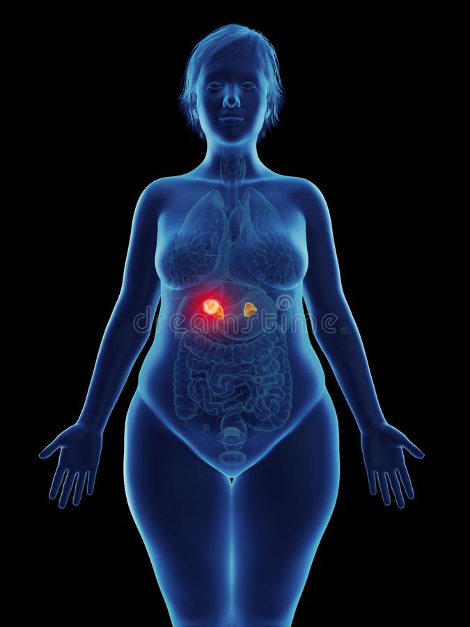 en tumör i en kvinnas binjur- körtel stock illustrationer