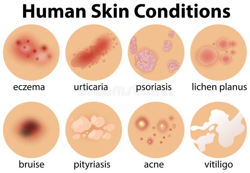 En uppsättning av mänskliga hudvillkor vektor illustrationer