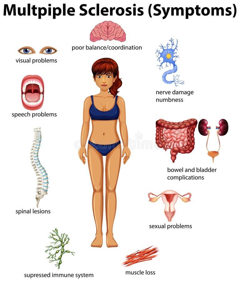 En utbildningsaffisch av multipel sklero vektor illustrationer